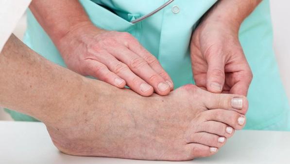 Рост и воспаление шишки на большом палце ноги - лечение от врачей-специалистов ГарантКлиник.
