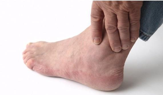 После операци Hallus Valgus/Халлюс Вальгус отекают ноги читайте рекомендации лучших специалистов-врачей в этой области.