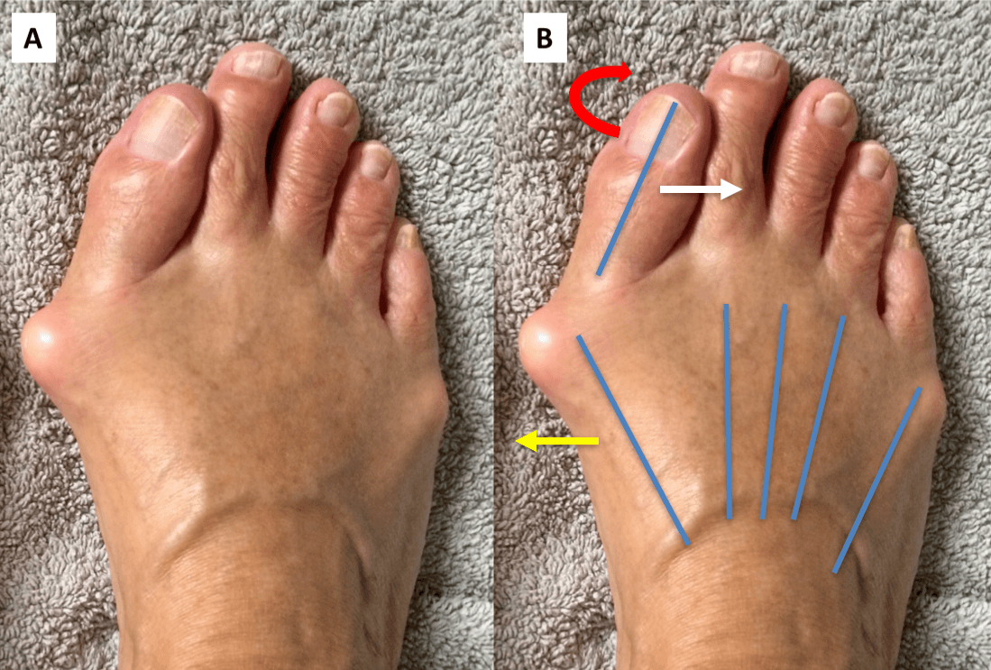 Сильная деформация большого пальца стоп ног с воспалением вальгуса.