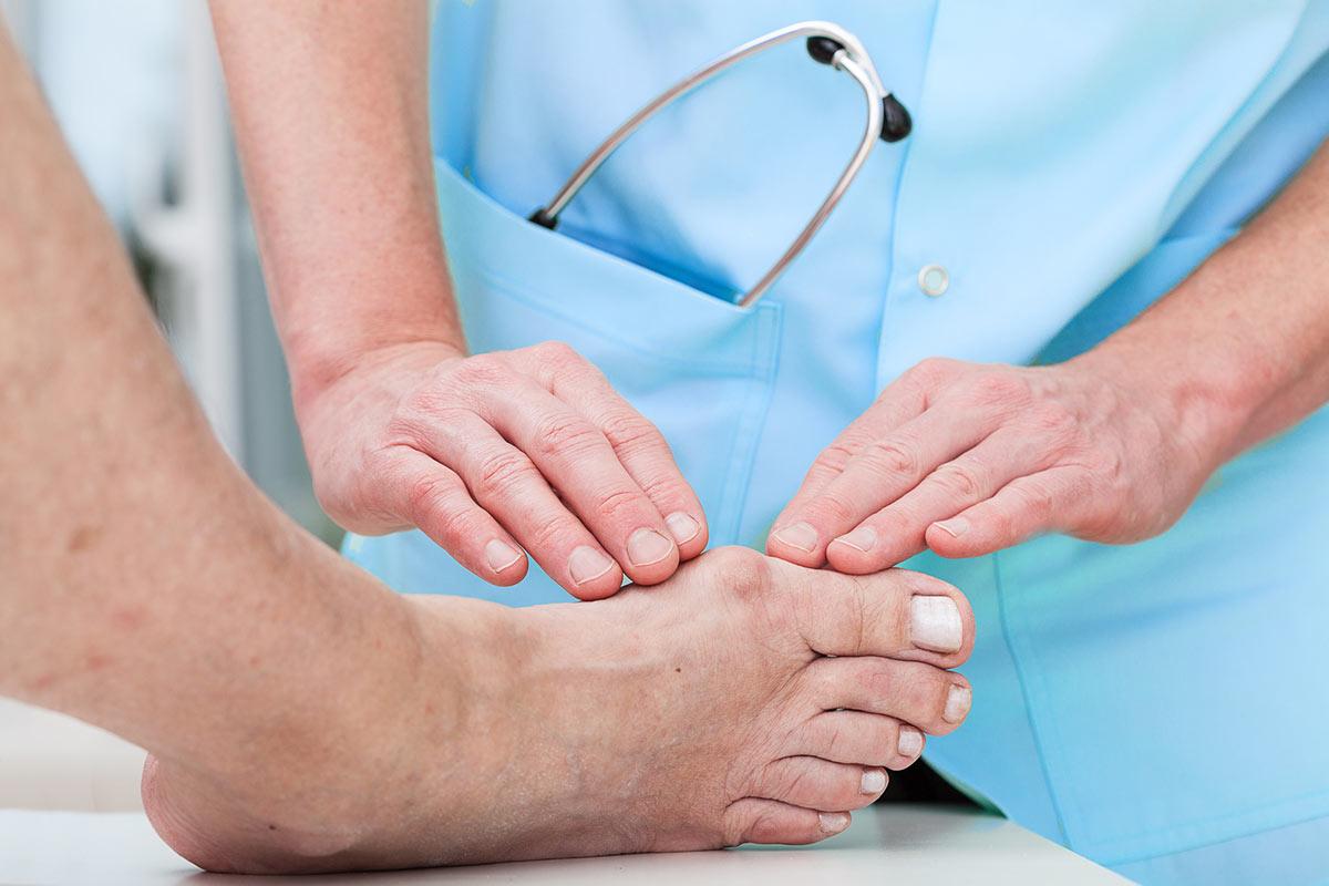 Как правильно надевать бандаж от вальгуса на палец ноги при воспалении шишки.