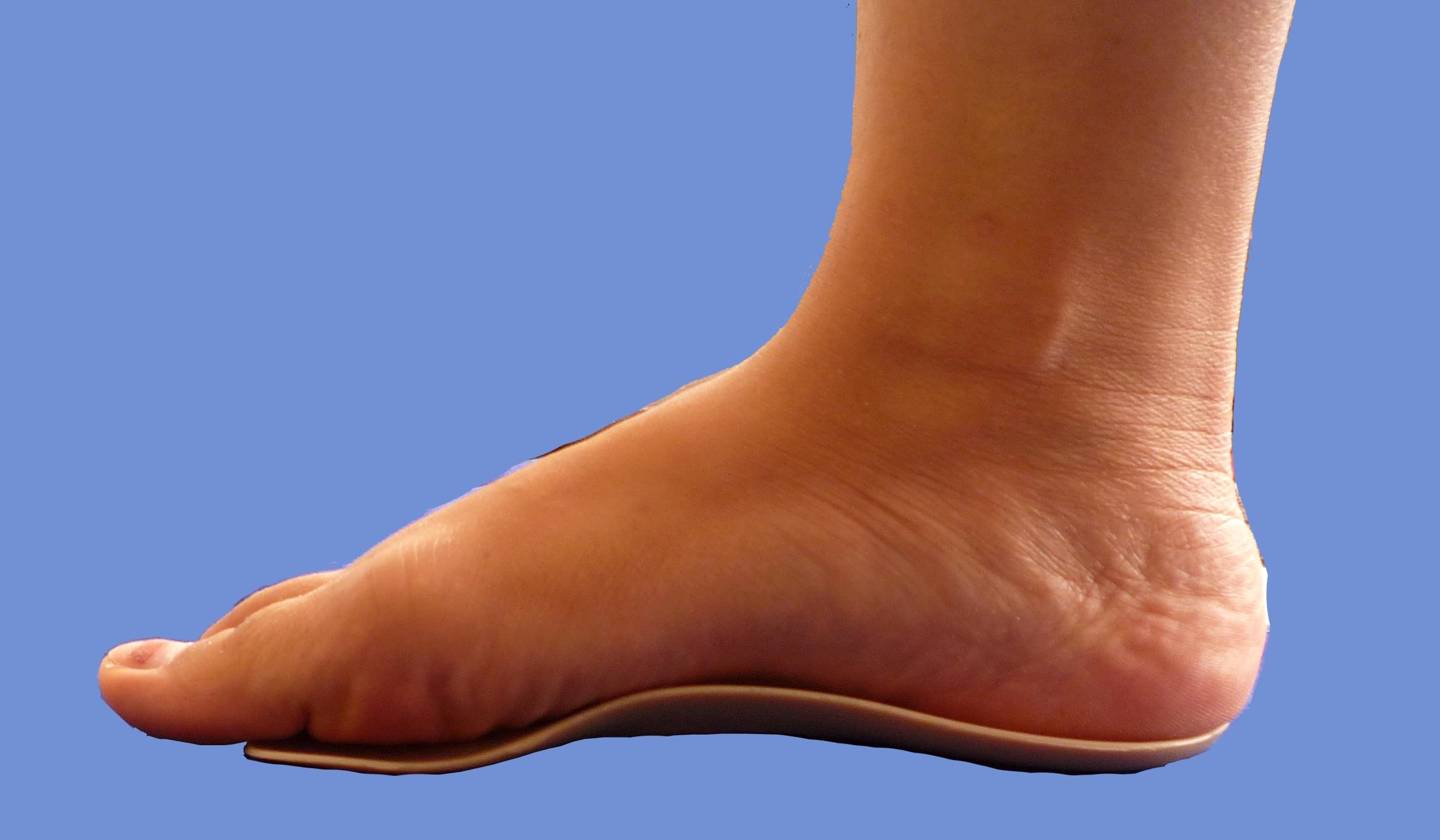 Ортопедические стельки и фиксаторы при лечении и профилактике деформации стопы.