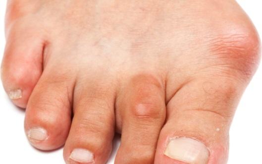 Причины возникновения косточки на ногах Hallus Valgus/Халлюс Вальгус и ее лечение.