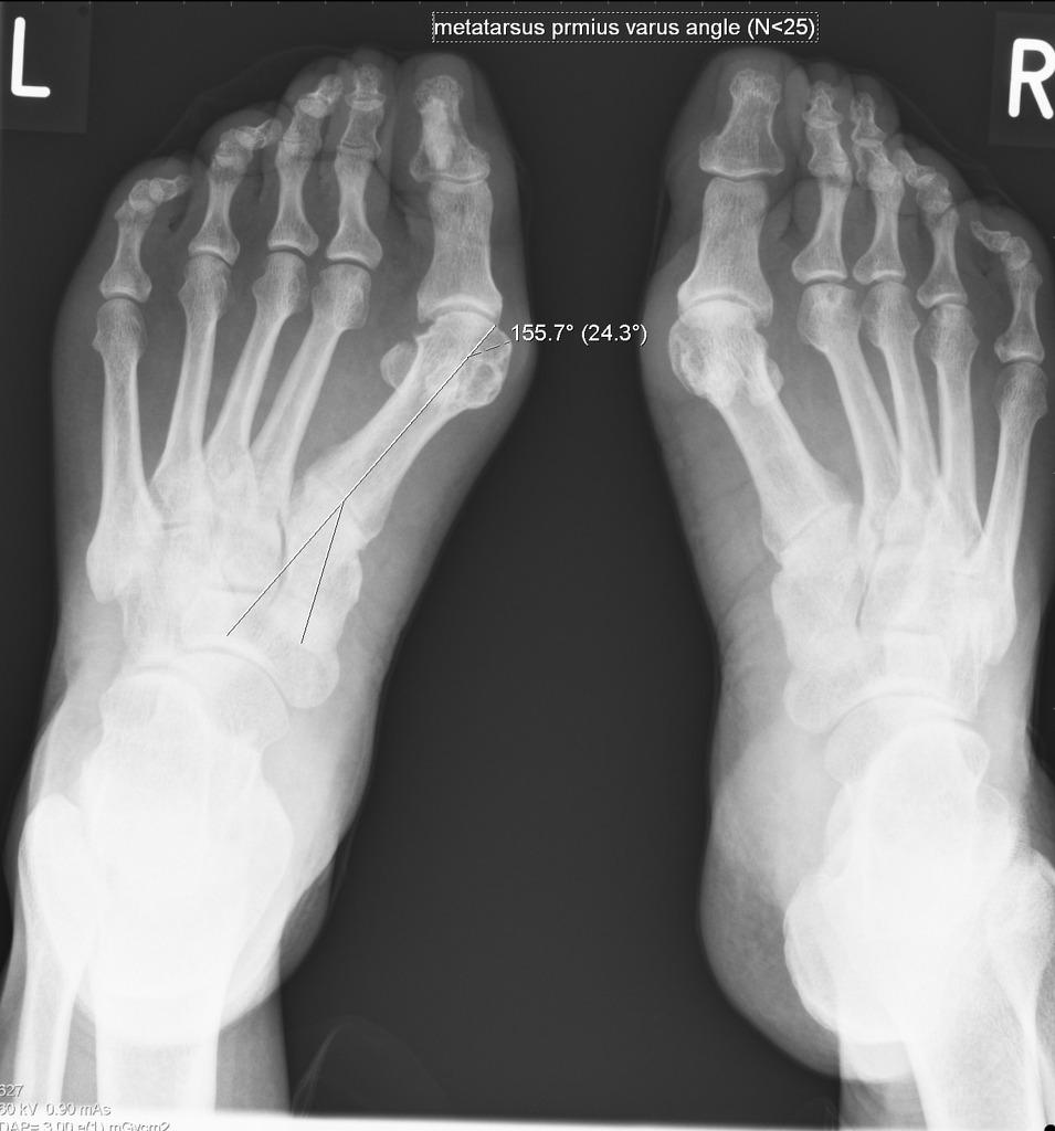 Ренгенография при лечении косточки на ноге народными средствами в домашних условиях.