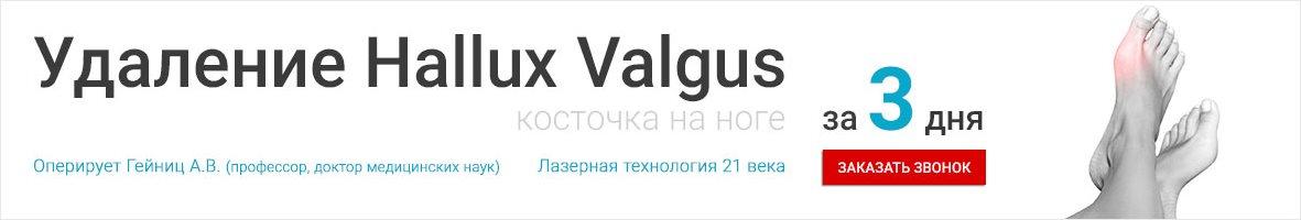 Операция по удаению шишки на ноге Hallus Valgus/Халлюс Вальгус в клинике на базе ПМГМУ им. Сеченова в Москве.