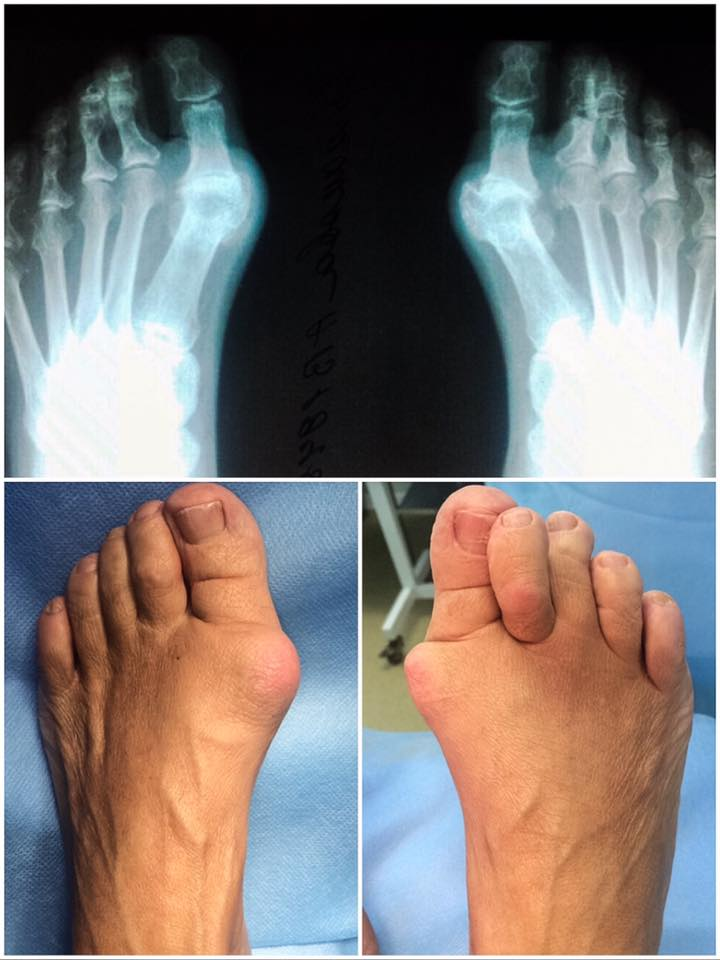 Лазерная методика удаления шишки на большом пальце ноги веущими врачами-отопдеами ПМГМУ им. Сеченова.