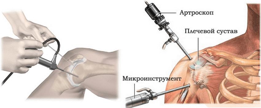 Процесс артроскопии плечевого сустава под накозом в Москве от специалистов ГарантКлиник.