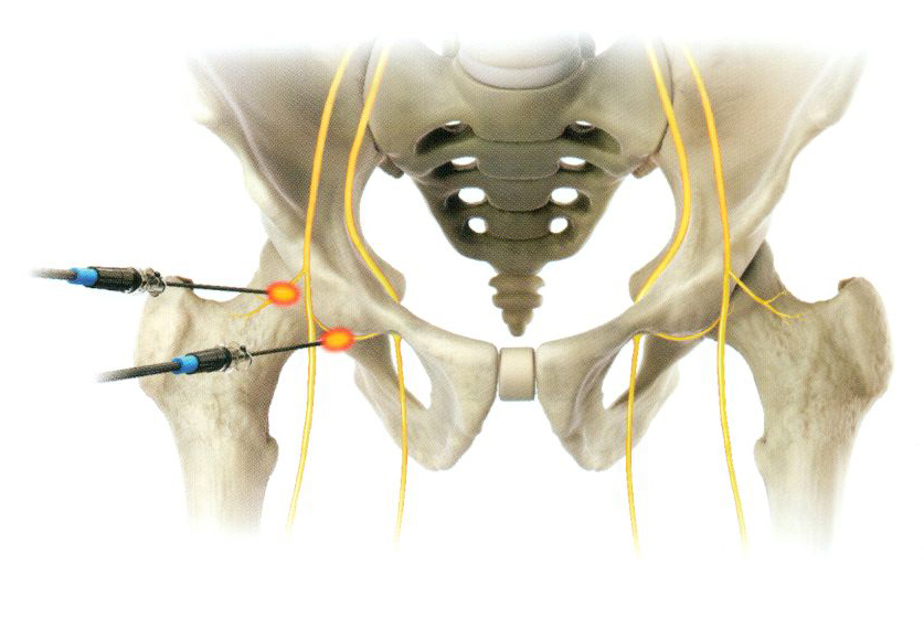 PRP-терапия таза/тазобедренного сустава ТБС процедура от ведущих врачей-специалистов в области ортопедии ГарантКлиник