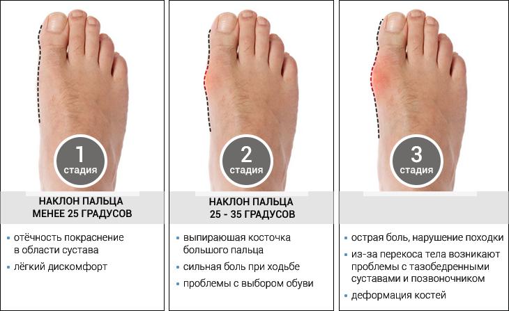 Цена удаления шишки на ноге/ногах лазером в Москве в ГарантКлиник от 70000/120000 рублей в зависимости от уровня врача-специалиста.
