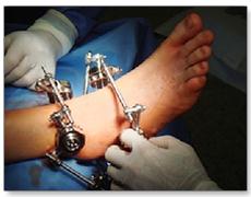 Операция полифасцикулярный остеосинтез костей стоимость в Москве стоимость от ведущих  врачей-специалистов в области ортопедии в ПМГМУ имени Сеченова.