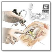 Артроскопическая операция на суставах общая информация от врачей специалистов в Москве.
